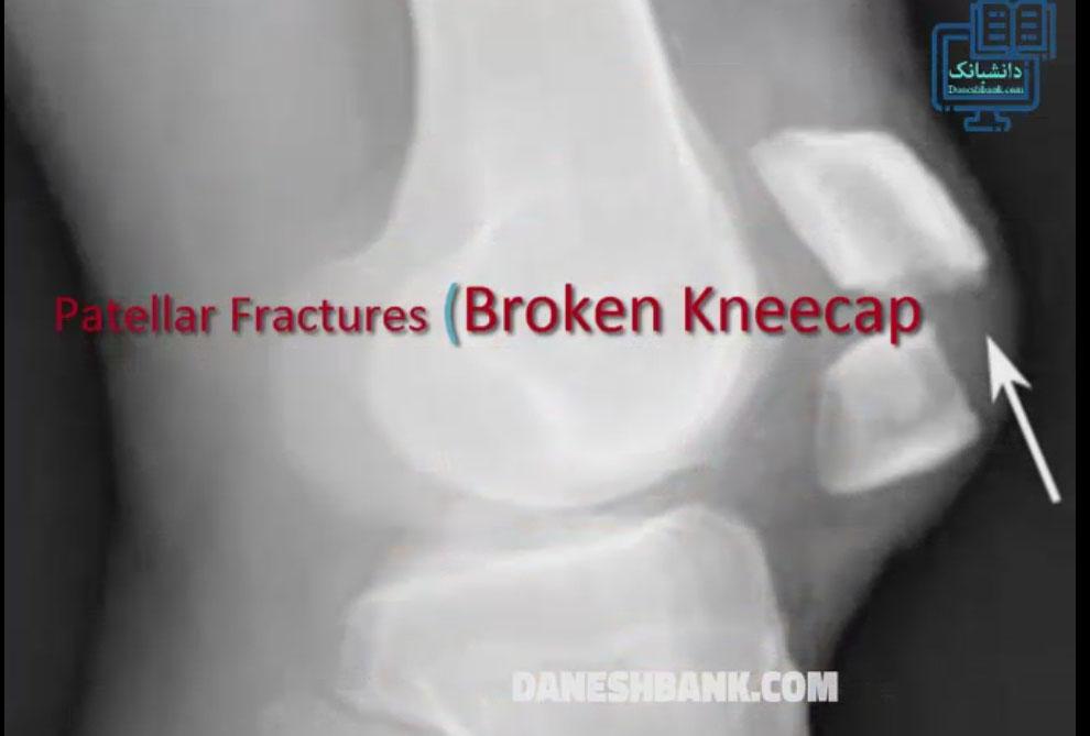 ترمیم شکستگی کشکک زانو (پاتلا
